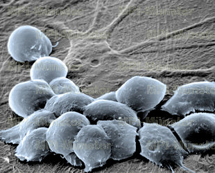 Embryonale oder adulte Stammzellen