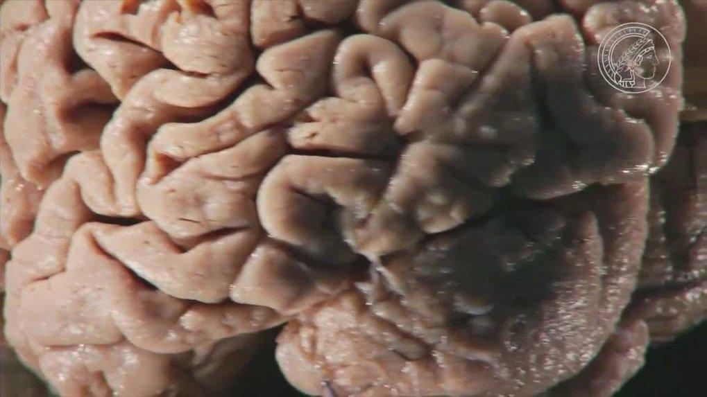 Tobias Bonhoeffer erforscht am Max-Planck-Institut in München die neurobiologischen Grundlagen des Lernens. Dabei hat er entdeckt, dass Synapsen im Ge