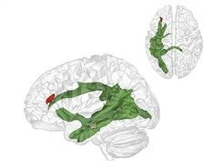 The maturation of fibres of a brain structure called the arcuate fascicle (green) between the ages of three and four years establishes a connection between two critical brain regions: A region at the back of the temporal lobe (brown) that supports adults thinking about others and their thoughts and a region in the frontal lobe (red) that is involved in keeping things at different levels of abstraction.