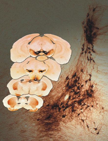 Dem Verfall auf der Spur. Links im Bild sind verschiedene Querschnitte durch das Mäusegehirn gezeigt. In den dunkler gefärbten Bereichen haben Max-Pla