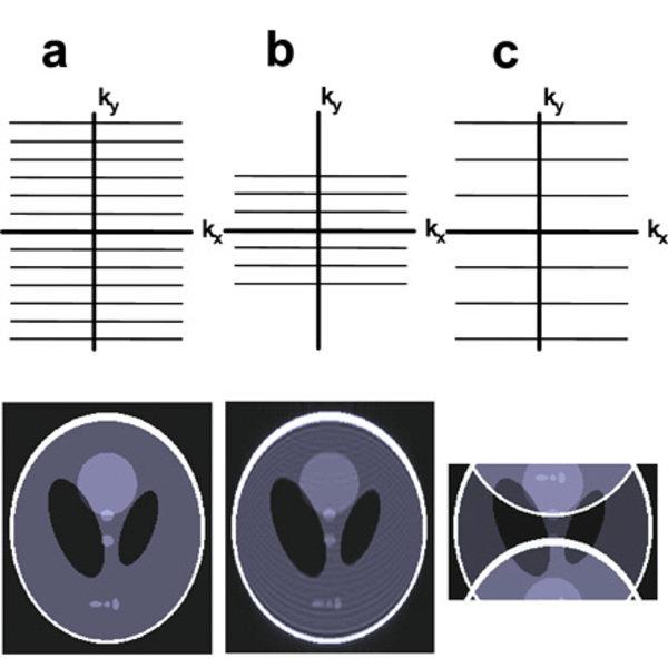 Schematische Darstellung des Zusammenhangs zwischen der Abtastung der k-Raumdaten und dem daraus resultierenden Bild. (a) Um ein hochaufgelöstes Bild