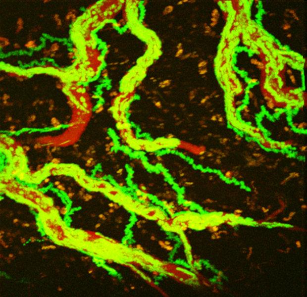 Wissenschaftler markieren aggressive T-Zellen mit fluoreszierenden Farbstoffen (hier GFP). So können sie die Bewegungen der Zellen (grün) im Blutsyste
