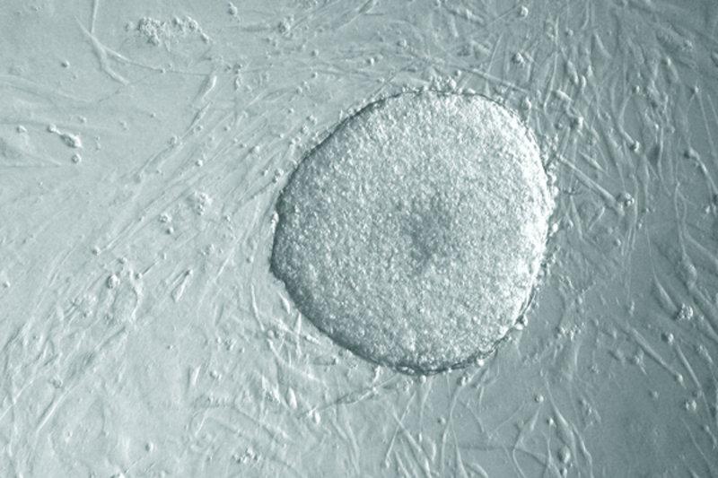 Eine Kolonie von 1-Faktor-iPS Zellen