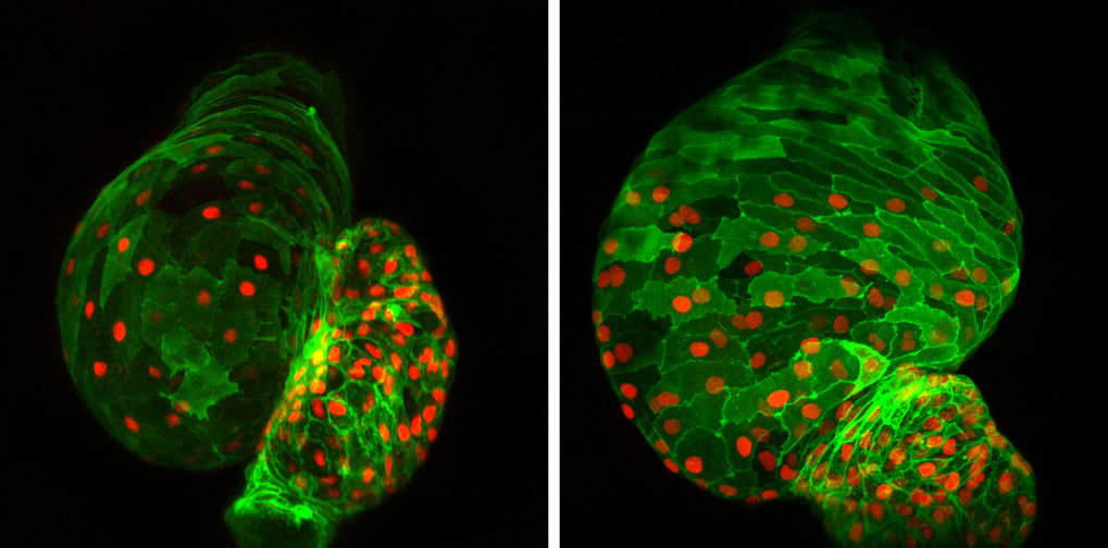Cardiac development out of control: Absence of the transcription factor Ajuba during cardiac development, as is the case in the right-hand photo due to genetic intervention, disrupts development of the heart in the fish embryo. In addition to an increased number of cardiac muscle cells (green with red-stained nuclei), the heart is additionally deformed during development.