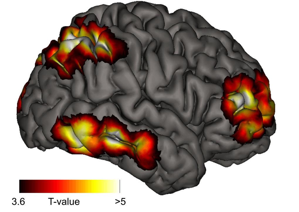 Der Sitz des Meta-Bewusstseins im Gehirn | Max-Planck-Gesellschaft