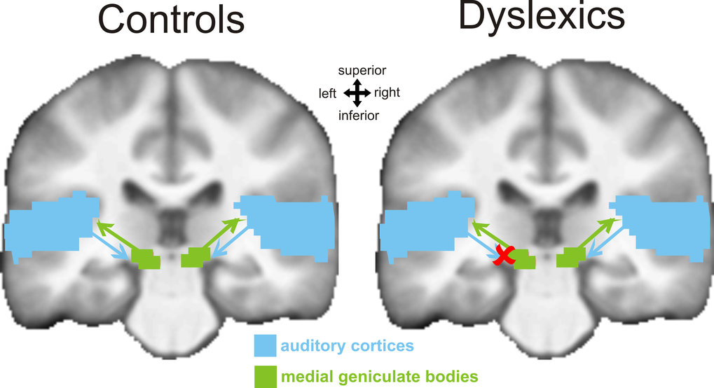 This figure compares the situation in the brain of dyslexics and the control group. The blue area depicts the auditory cortices and the green area represents the medial geniculate bodies.