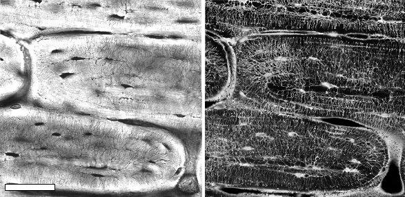 Abb. 1: Plexiformer Schafsknochen. Links: Die Lichtmikroskopaufnahme zeigt Knochenpakete im kompakten Knochen; diese sind voneinander abgetrennt durch