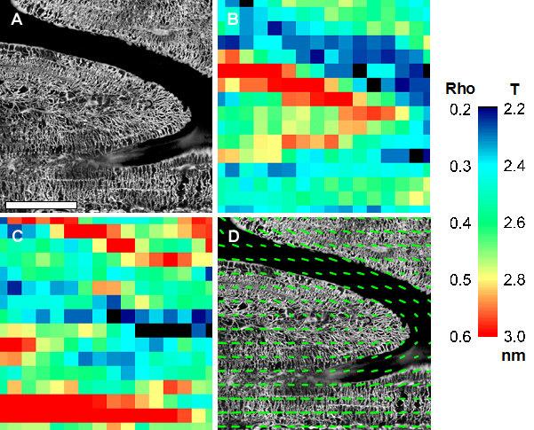 Abb. 2: Plexiformer Schafsknochen: (A) visualisiert mit konfokaler Laser-Scanning-Mikroskopie (CLSM), (B) Mineralpartikeldicke (T-Paramter in nm), (C)