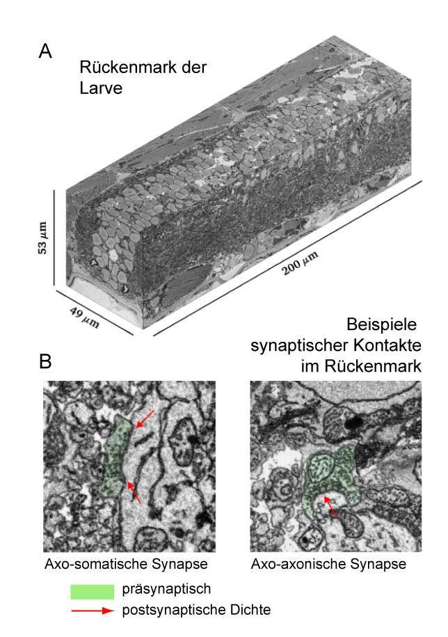 <p><b>Abb. 4: Serielle <i>blockface-</i>Rasterelektronenmikroskopie im Rückenmark</b></p> <p>(A) Ein 3-dimensionales Volumen aus dem Rückenmark der La
