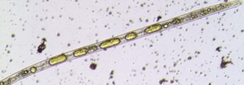 Mikroskopische Aufnahme des Fadenwurms <em>Radopholus similis</em>: In dem Nematoden sind deutlich die Fetttr&ouml;pfchen zu sehen, die die Abwehrsubs