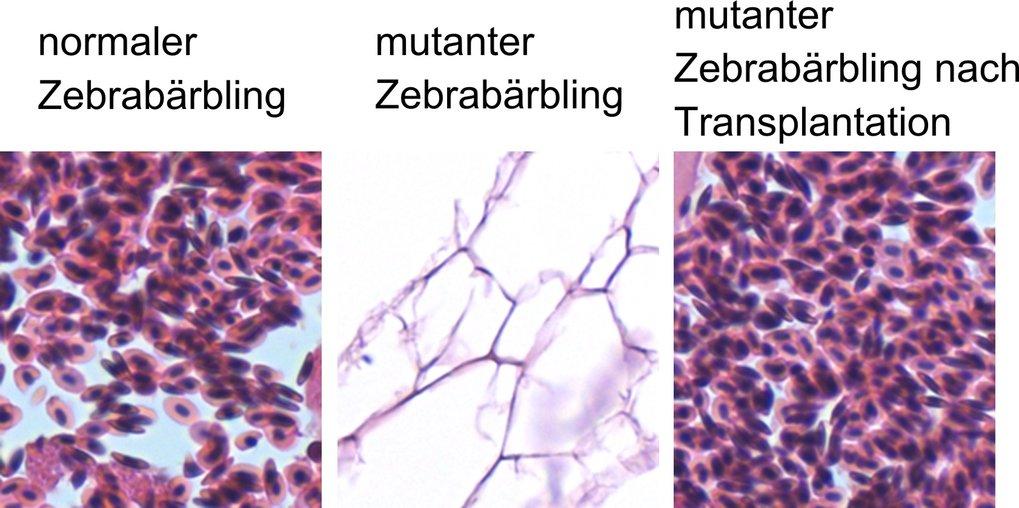 Abb. 1: Wiederherstellung der Blutbildung in mutierten Zebrabärblingen nach Transplantation von Blutzellen aus der Niere normaler Zebrabärblinge. Geze