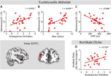 Abb. 3: Funktionelle Aktivität und kortikale Dicke im linken dorsolateralen präfrontalen Kortex (DLPFC). Aktivierungsmuster im linken DLPFC zeigten ei