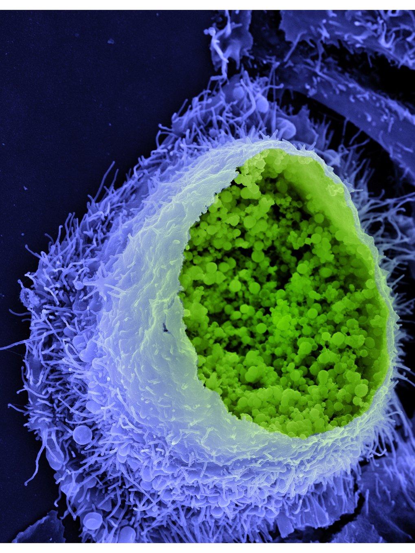 Eine Chlamydien-Infektion begünstigt Prozesse der Krebsentstehung.