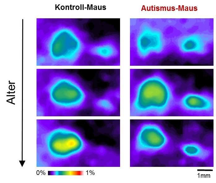 <strong>Abb. 2</strong>: Mit zunehmendem Alter reagiert die Inselrinde von Kontroll-Mäusen weniger stark auf einen Ton einer einzigen Frequenz. D