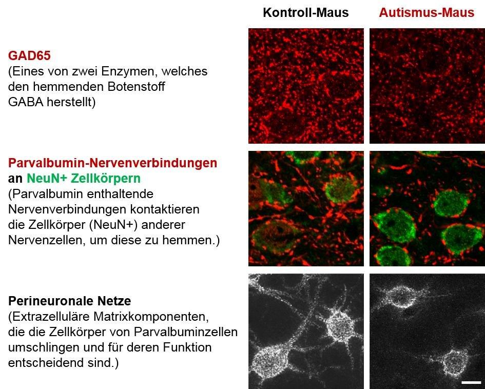 <strong>Abb. 3</strong>: Verschiedene Marker für die Funktion von hemmenden Nervenzellverbindungen sind in Autismus-Mäusen vermindert. Ma&sz
