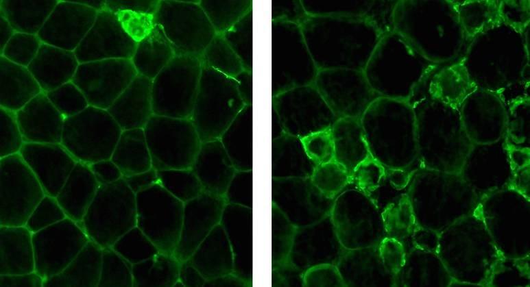 Abb. 1: HO-1 fördert Entzündungen im Fettgewebe bei Fettleibigkeit. Gesundes Fettgewebe (links) ist normalerweise frei von Fresszellen (grün gefärbt),