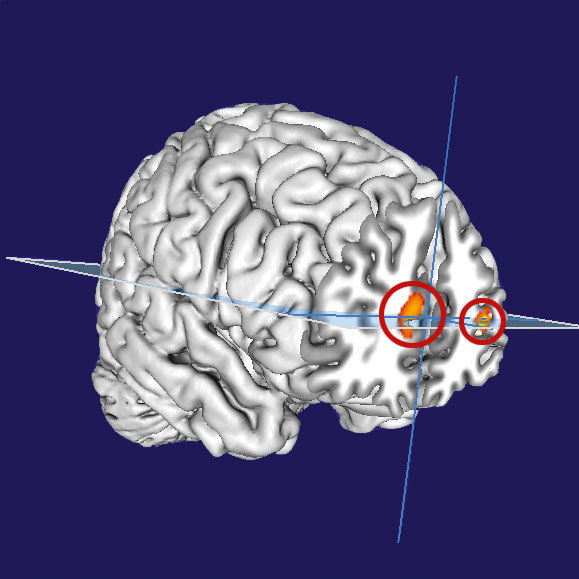 Lucid dreams and metacognition: Awareness of thinking