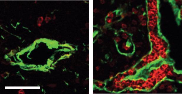 Abb. 1: Links: Der normale Thymus einer Maus enthält nur wenige B-Zellen, hier mit einem roten Farbstoff markiert. Das die Blutgefäße umschließende Bi