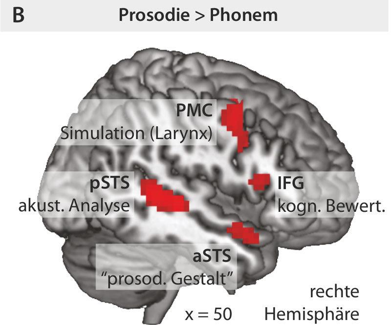Beim Lösen der Prosodie-Aufgabe sind zwei Gruppen von Gehirngebieten in der rechten Hirnhälfte aktiv (rot).