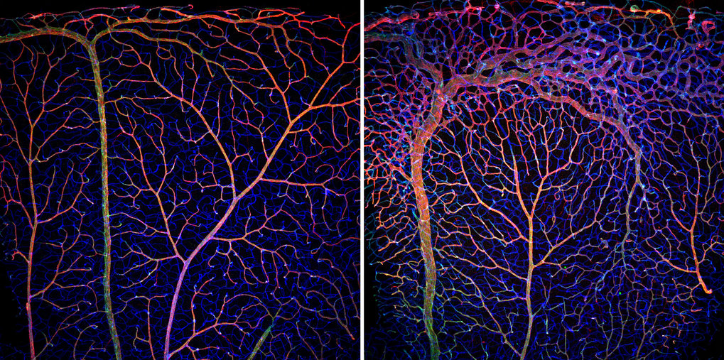 Absence of transcription factor unleashes blood vessel growth | Max ...