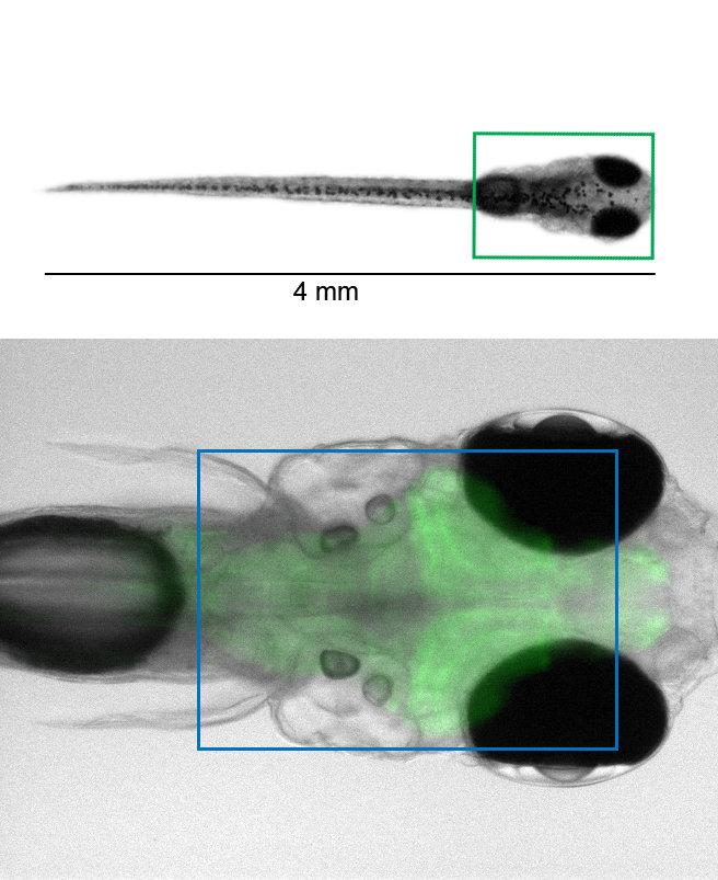 <p><strong>Abb. 1</strong>: (Oben) Eine Zebrafischlarve. Das grüne Viereck im oberen Bild ist im unteren Bild vergrößert dargestellt. (Unten) Das Gehi