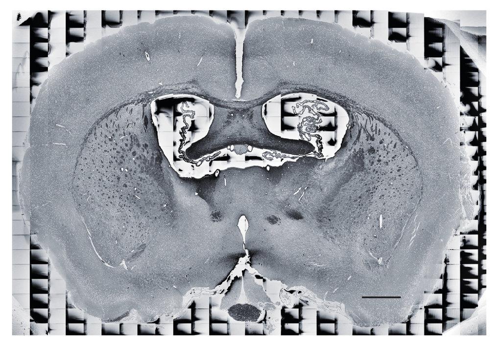 <p><strong>Abb.1</strong>: Schnitt in vertikaler und rechts-links-Richtung durch Mäusehirn, das mithilfe der BROPA-Methode vorbereitet und mit einem R