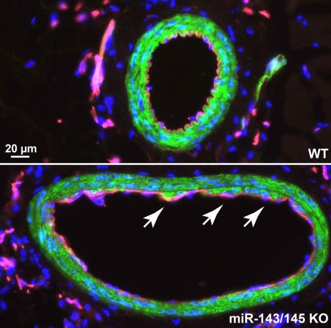 miRNAs regulieren essentielle Funktionen im kardiovaskulären System ...