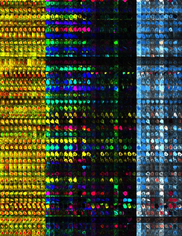 Aktive Nervenzellen der visuellen Großhirnrinde der Maus bei veränderten Sinneseindrücken. Die Bilder einer Reihe zeigen jeweils eine einzige Nervenze