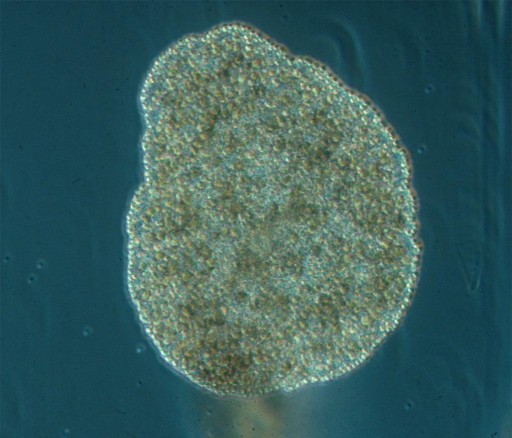 Nur wenige Tiere besitzen keine Symmetrie-Achse - <em>Trichoplax adhaerens</em> ist einer davon. Der zu den Placozoa (Plattentiere) gehörende Organism