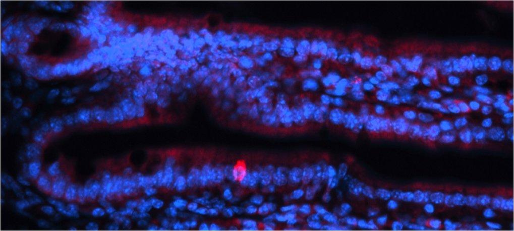 Abb. 2: Seltene Zelltypen sind für die Funktion von Organen sehr wichtig, lassen sich aber nur schwer entdecken und charakterisieren. Die Einzelzellse
