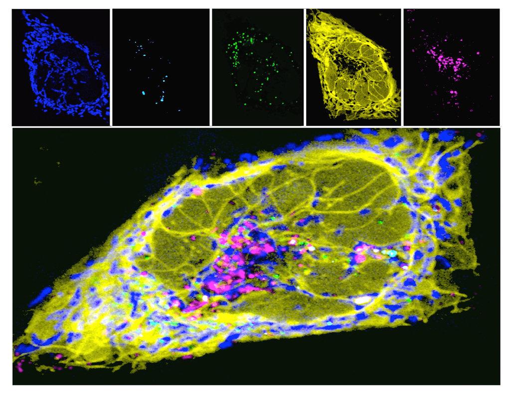 Abb. 3: Multispektrale und hochauflösende Lebendzellmikroskopie erlaubt die gleichzeitige Darstellung mehrerer Organellen in lebenden Zellen. Diese Te
