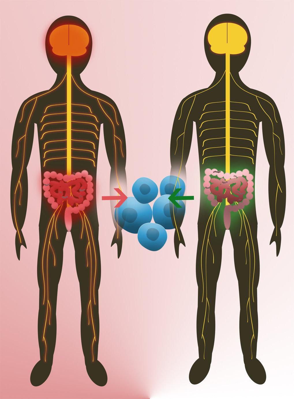 Zwillingsstudien zeigen, dass die natürliche Darmflora darauf Einfluss hat, ob ein Mensch an Multipler Sklerose erkrankt (links). Eine zentrale Rolle