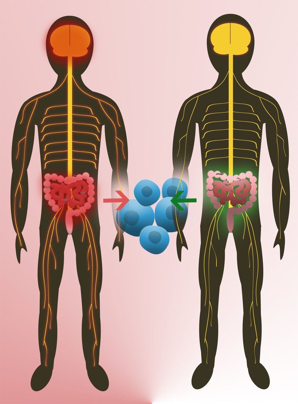 Intestinal flora from twins is able to initiate multiple sclerosis