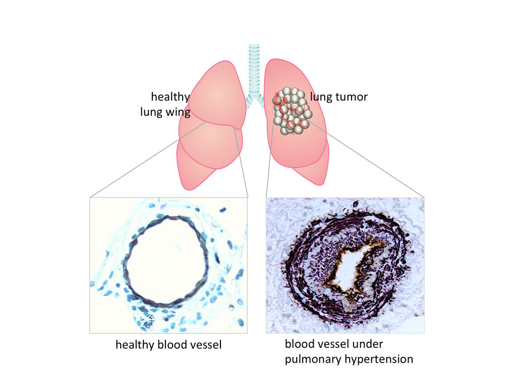 Lung cancer triggers pulmonary hypertension