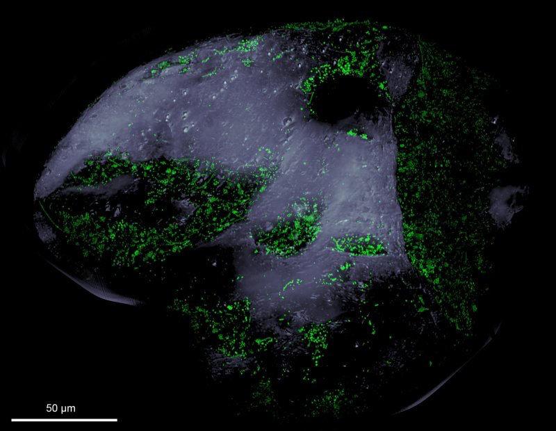 Blick auf ein Sandkorn unter dem Fluoreszenzmikroskop: Die grünen Pünktchen sind eingefärbte Bakterien, die sich vor allem in Vertiefungen auf dem San