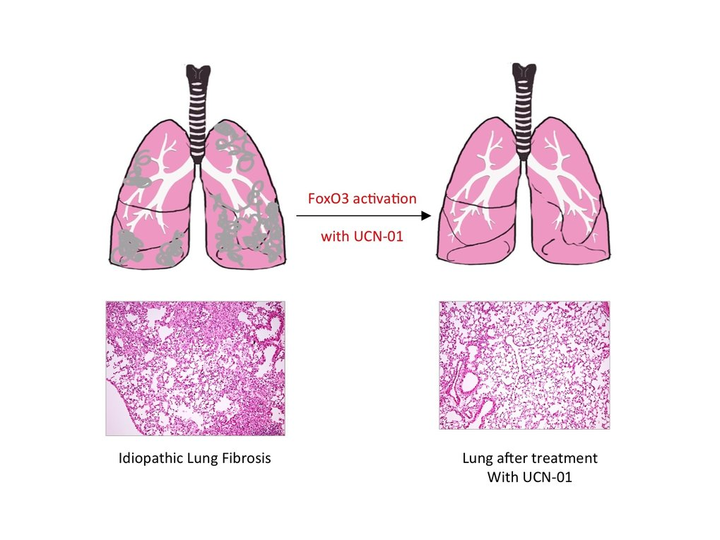 Pulmonary fibrosis caused by single transcription factor
