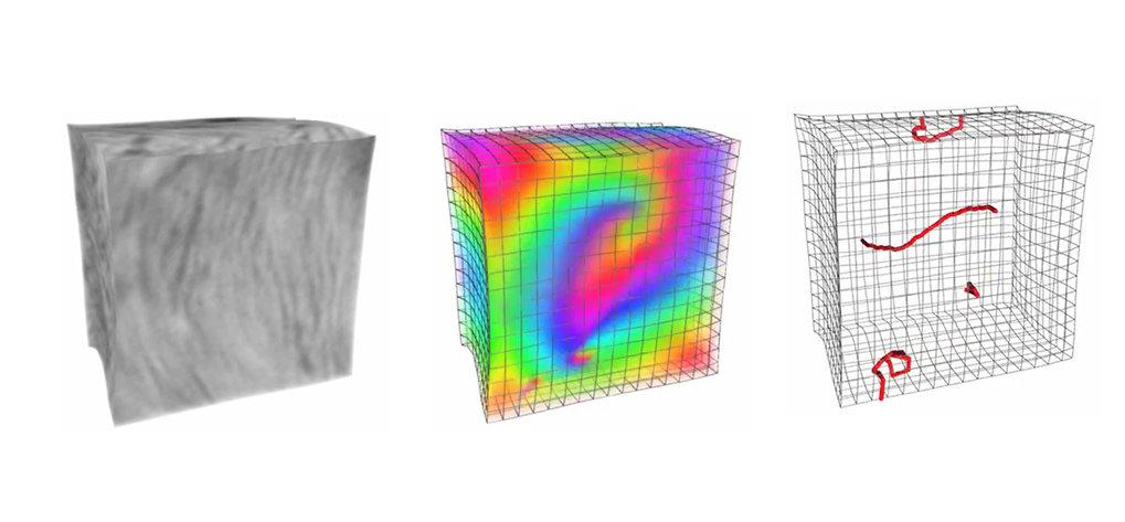 Zum Kern des Kammerflimmerns: Aus Ultraschallbildern (links) rekonstruieren Max-Planck-Forscher, wie der Herzmuskel bei einer Herzrhythmusstörung wirb
