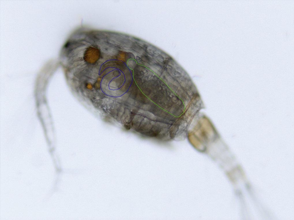 Im Mikroskop werden die heimlichen Untermieter sichtbar: Oft befallen mehrere Parasiten ein- und denselben Krebs, wie hier der Bandwurm <em>Schistocep