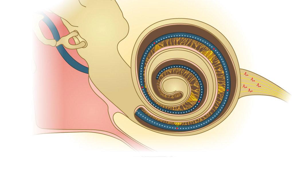 Mit herkömmlichen Cochlea-Implantaten können schwerhörige Menschen keine Melodien in Sprache und Musik erkennen. Eine Alternative könnten Implantate s