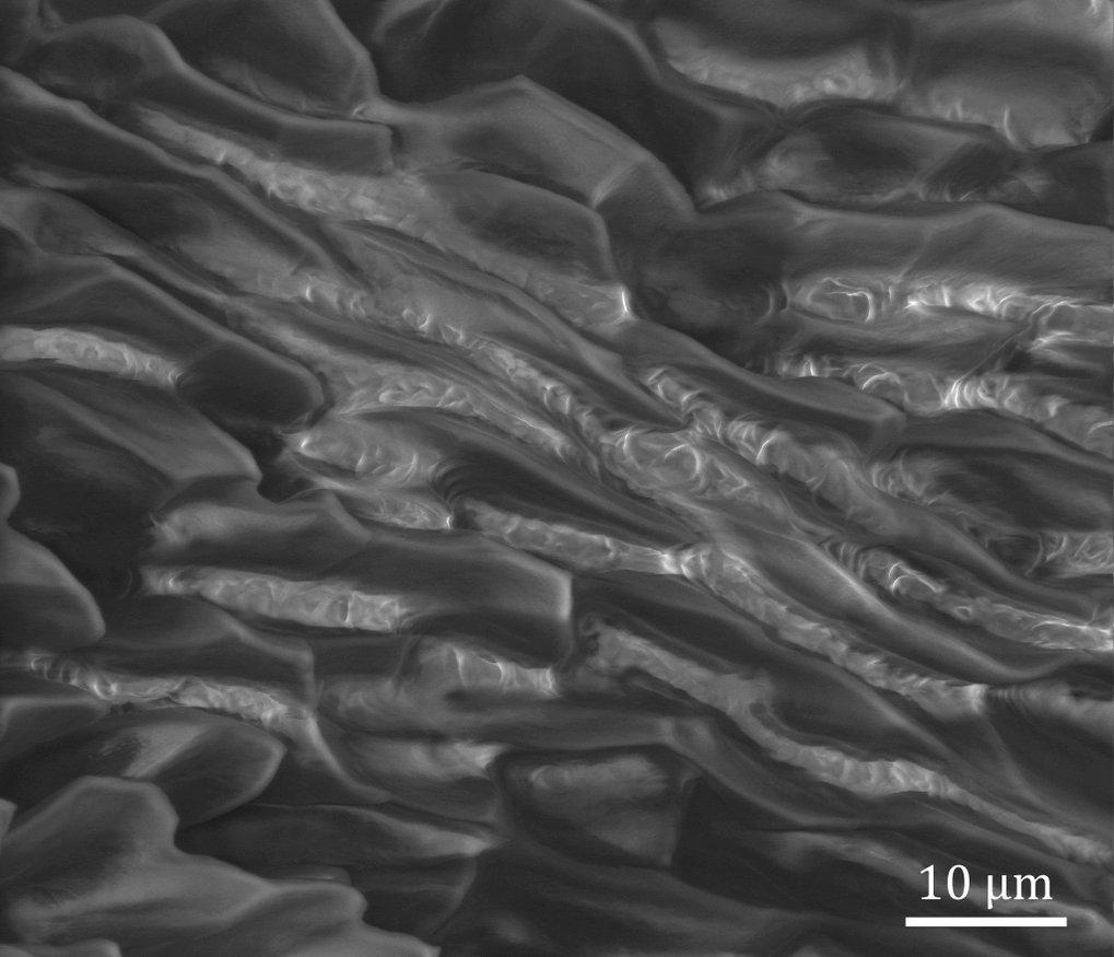 Elektronenmikroskopische Aufnahme der Verbindungszone zwischen den beiden Kapselhälften. Diese wachsreiche Zone sorgt für die Versiegelung im geschlos