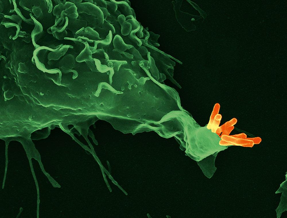 Ein Bluttest könnte künftig latent infizierte Menschen mit hohem Erkrankungsrisiko identifizieren