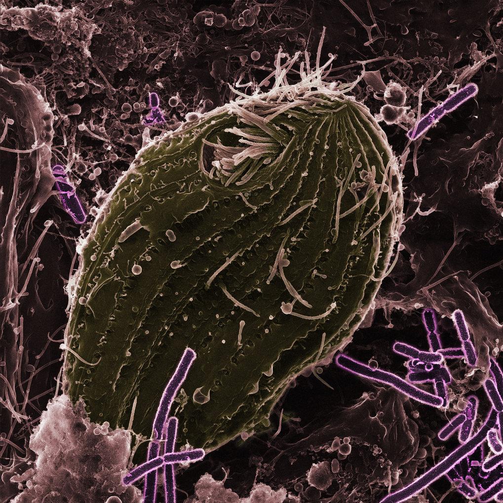 Der Einzeller Tetrahymena thermophila (grau) und seine Beute,Pseudomonas fluorescence-Bakterien (lila).
