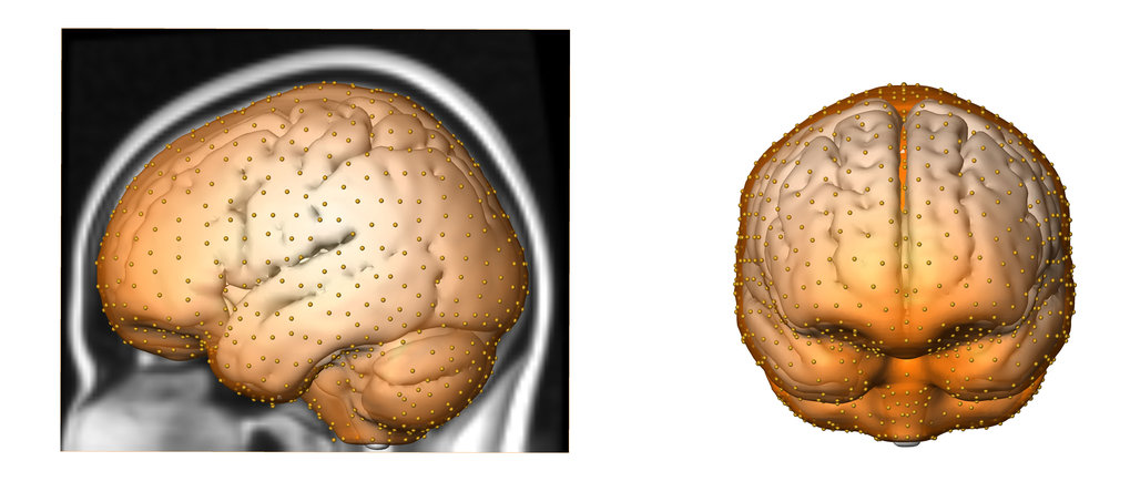 Genes Impact Suspect Cortex Areas More >> Neandertal Genes Influence Brain Development Of Modern Humans Max