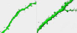 Abbildung 2:<b> </b>Synapsen sind als kleine Fortsätze erkennbar. Ihre Zahl nimmt mit der Menge an SynCAM1 (rechts) zu. Zum Vergleich links ein Dendri
