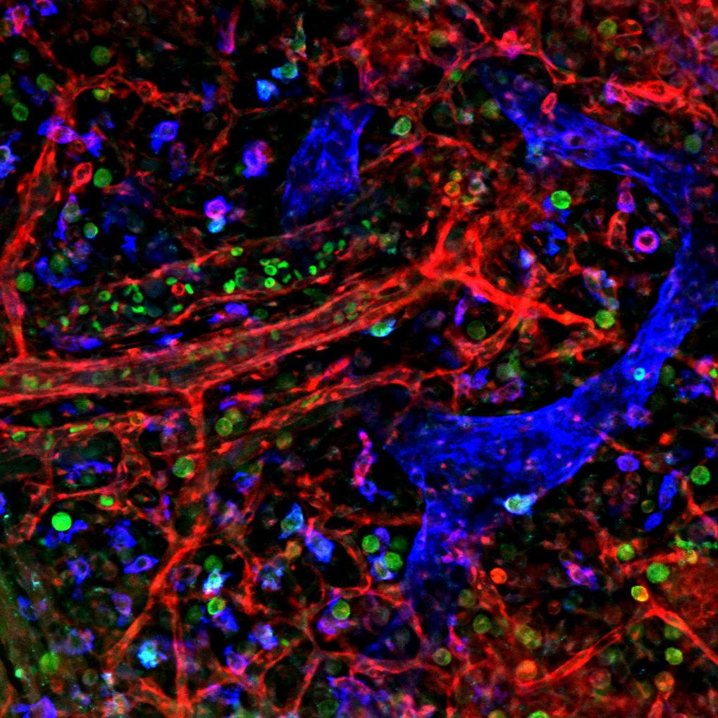 <b>Abb. 1.</b> Haut eines gesunden, 15 Tage alten Maus-Fötus mit Blut- (rot) und Lymphgefäßen (blau) im Fluoreszenzmikroskop. Das Enzym Syk kommt nur