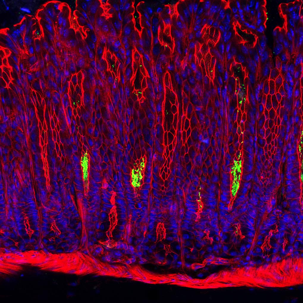 Querschnitt durch die Magenschleimhaut einer Maus: Helicobacter pylori-Bakterien (grün) besiedeln die Vertiefungen der Magendrüsen. Die Kerne der Schl