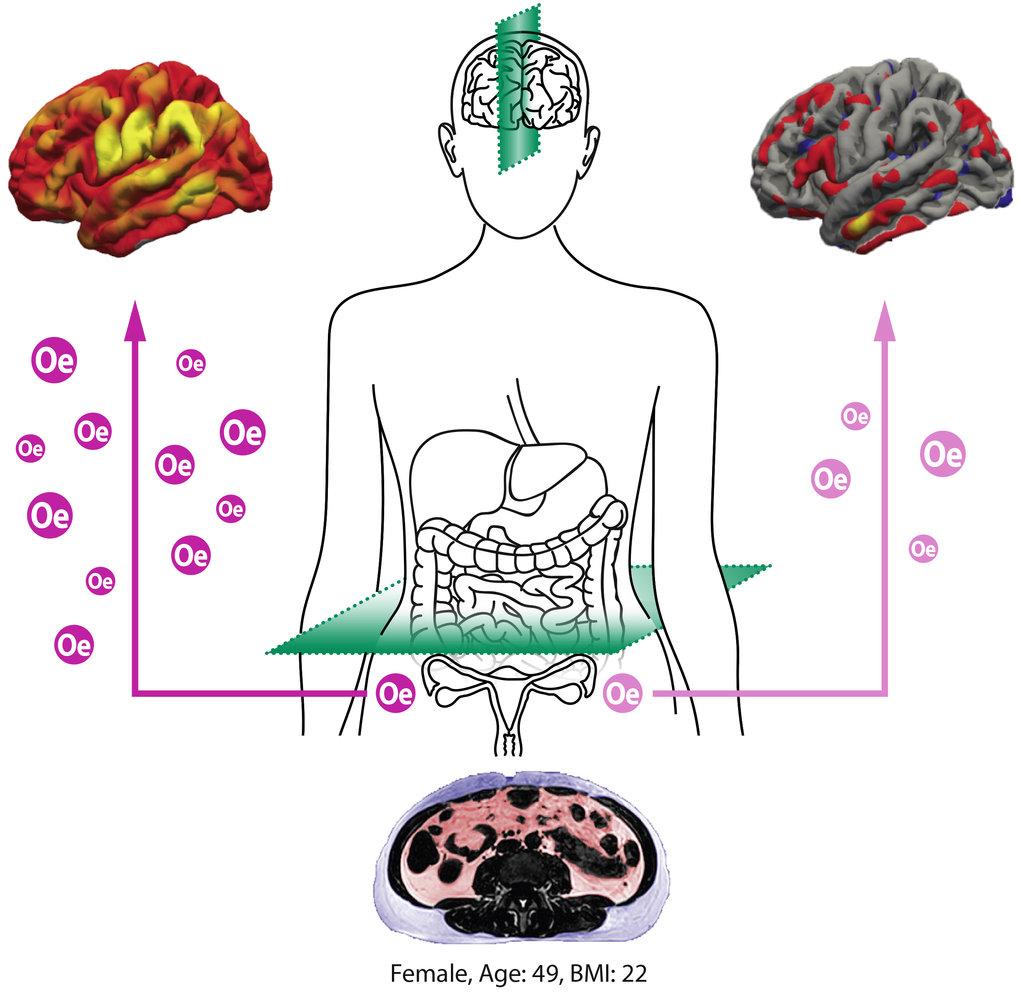Erhöhtes Organfett (Scan unten) beschleunigt die Alterung von Gehirnnetzwerken. Östradiol (Oe) scheint das Gehirn von Frauen während der Lebensmitte v