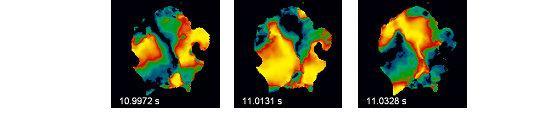 Raum-zeitliches Erregungsmuster auf der Oberfläche eines Herzens während kardialer Fibrillation (Bildfeld 6 x 6 cm2). Farbcode: schwarz = in Ruhe, gel