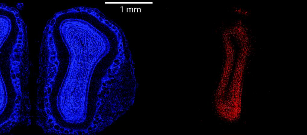 Durch Injektion eines Adeno-assoziierten Virus wurden gezielt Körnerzellen des bulbus olfactorius infiziert. Blau: Anfärbung aller Zellkörper; rot: Vi