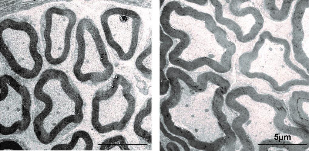 Elektronenmikroskopische Aufnahme von Axonen im Querschnitt. Mäuse, denen das Gen CMTM6 fehlt (rechts), besitzen dickere Axone als Tiere mit funktioni
